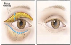 Image - Tissue removal areas in a blepharoplasty