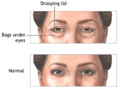 Image - Drooping lids and bags under eyes
