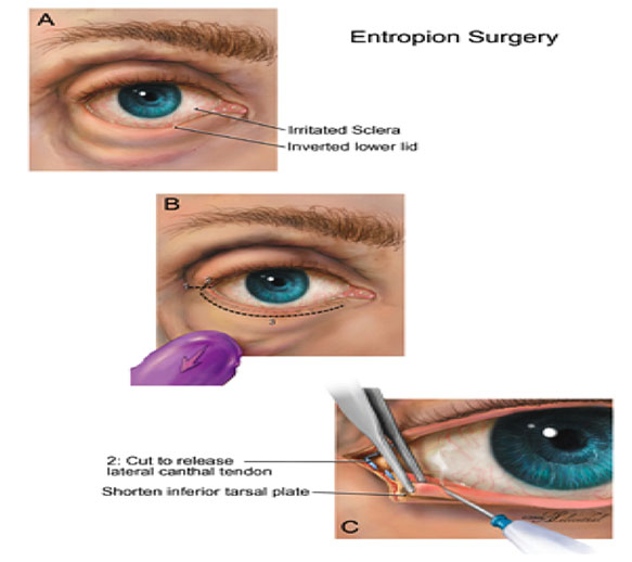 Entropion Surgery